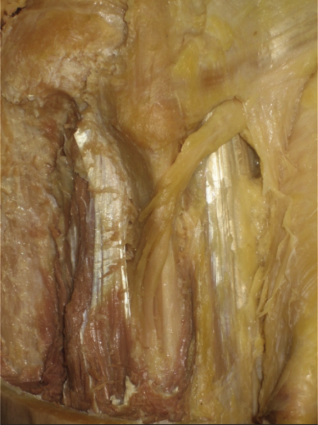 腓骨神経②