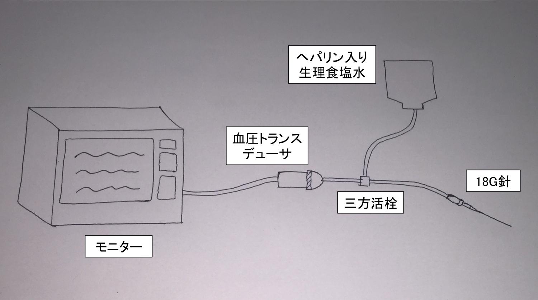 コンパートメント内圧測定 Aラインキット