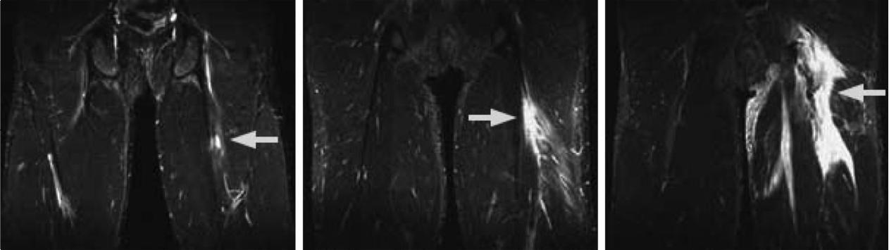 肉離れ MRI