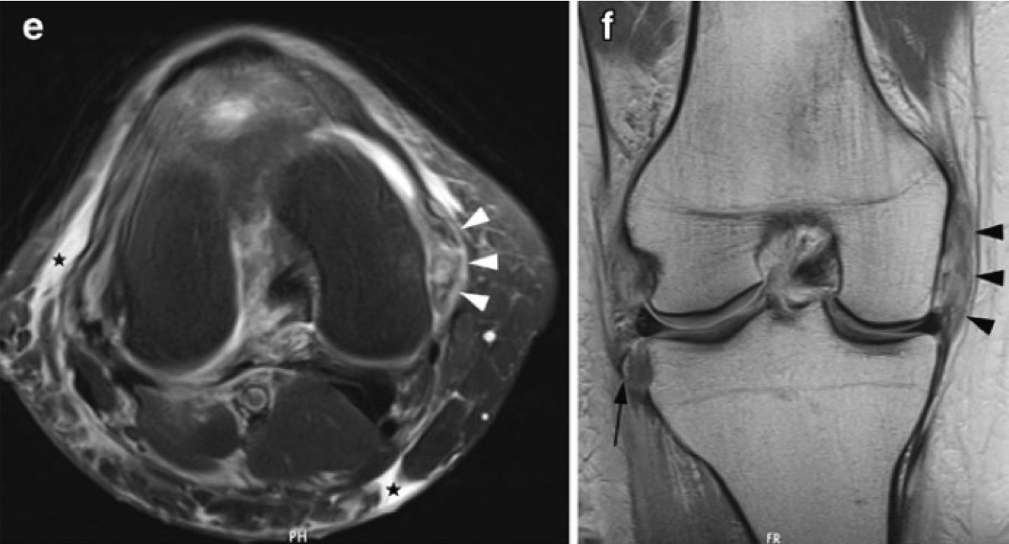 MCL損傷 MRI
