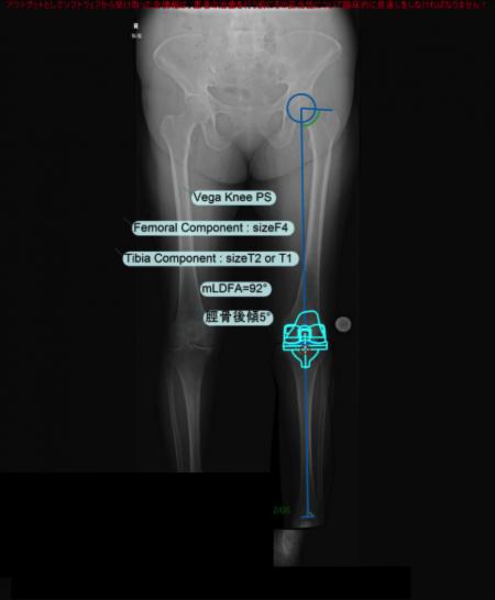 TKA 作図 下肢全長