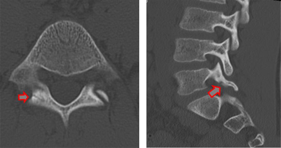 症例2 CT像