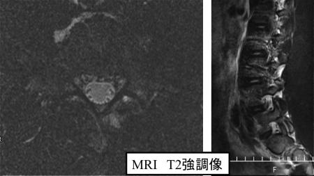 症例2 2年後MRI
