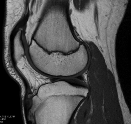オスグットシュラッター病 MRI像