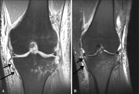 MCL脛骨引き抜き損傷 MRI