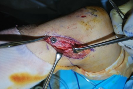MCL損傷 修復術④
