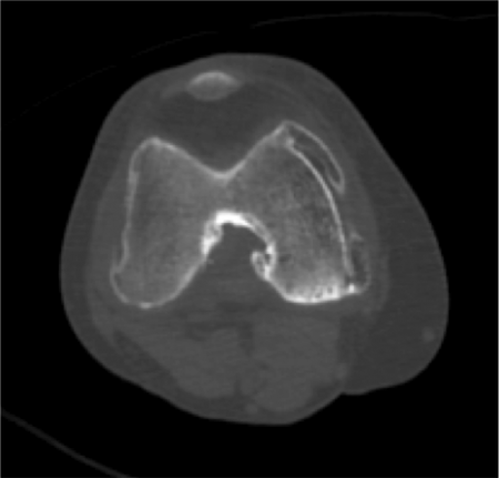 変形性膝関節症 CT axial