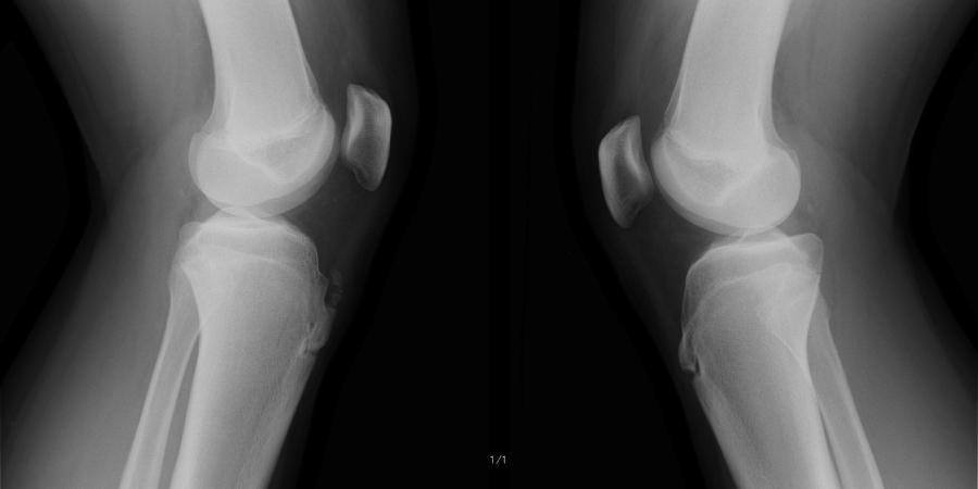 オスグットシュラッター病 X線