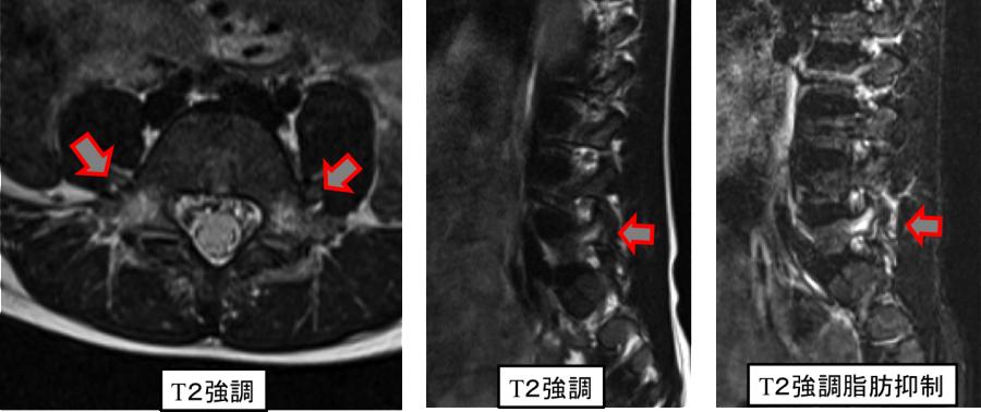症例1 MRI像