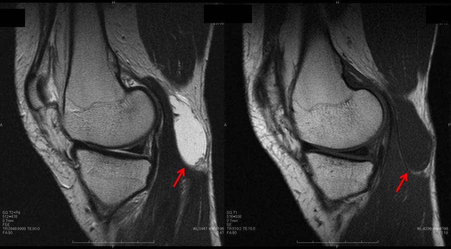 ベーカー嚢腫 MRI sagital