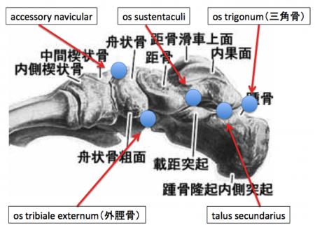 足 内側 副骨