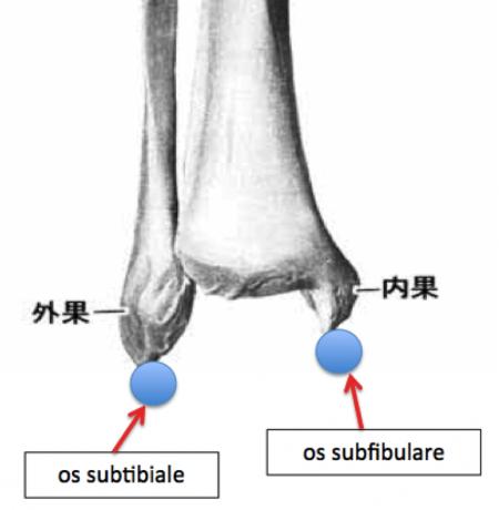 足関節 副骨核