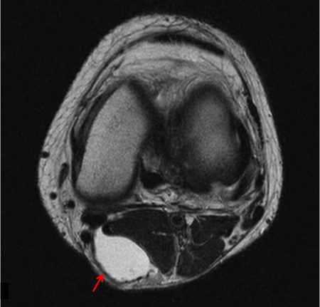 ベーカー嚢腫 MRI axial