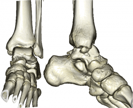 os subtibiale 3D-CT