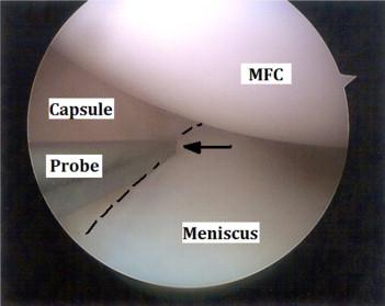 meniscocapsular separation 鏡視