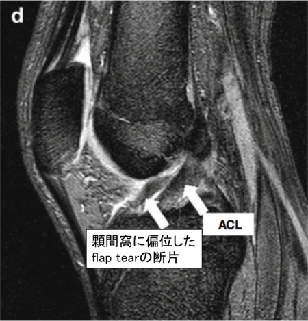 double ACL sign MRI