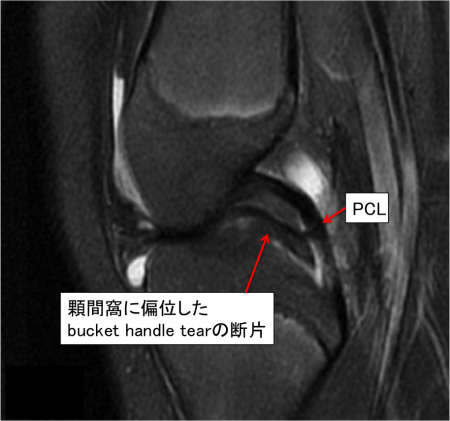 double PCL sign MRI