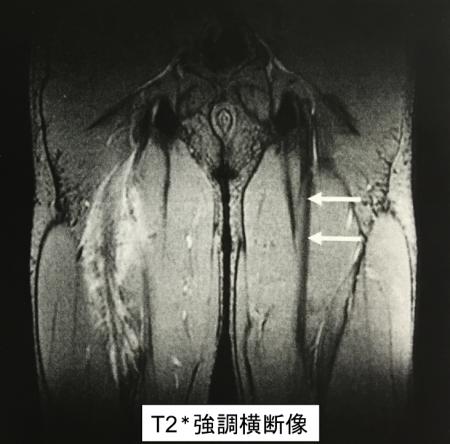筋腱移行部 血腫