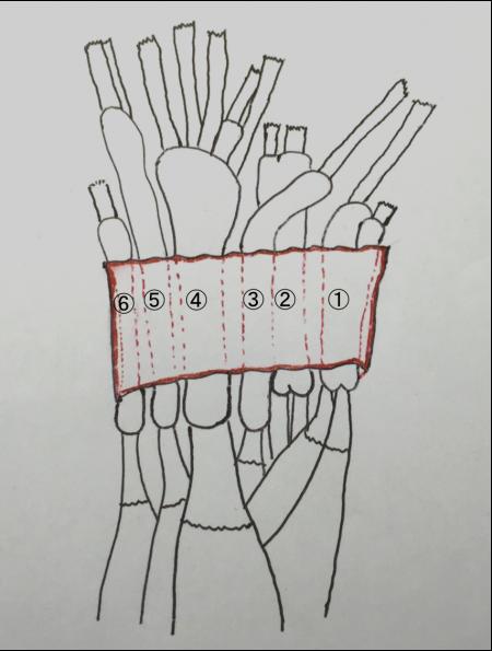 伸筋支帯 区画 2