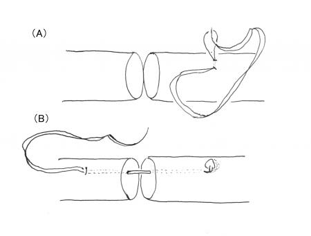 アキレス腱縫合1-2