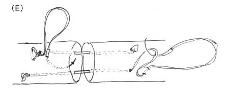 アキレス腱縫合4-2
