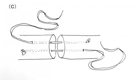 アキレス腱縫合2-2