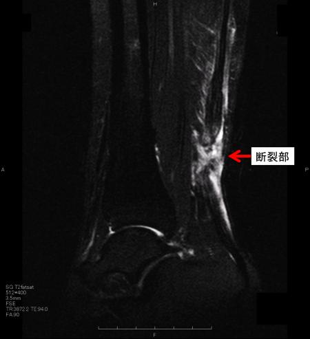 アキレス腱断裂 MRI