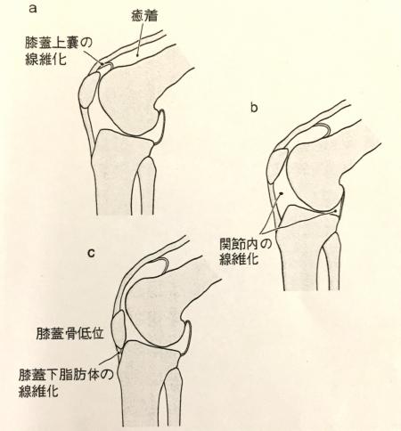膝関節拘縮 原因