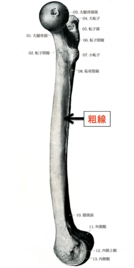 大腿骨 粗線